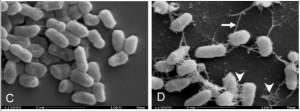 Billedet viser en EAEC stamme (D, til højre) og en anden stamme (C, til venstre). EAEC stammen har en række adhærende fimbria der binder til hinanden. Kilde: Pereira, BMC Microbiology, 2010.