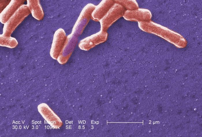 Elektronmikroskopi billede af E. coli. Kilde: hukuzatuna/Flickr.