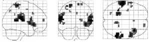 Disse områder af hjernen er aktive når noget kilder.