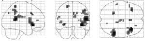 Disse områder af hjernen er aktive når vi anticiperer at vi bliver kildet.