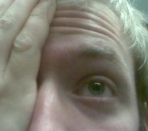 store pupiller årsag