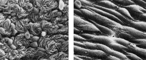 Celler i vores luftveje før og 3 dage efter en influenza infektion.